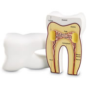 Tooth Model